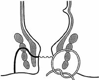 Chirurgia Fistole-anali