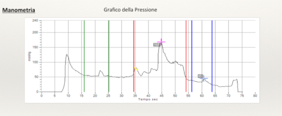 Manometria Grafico Pressione