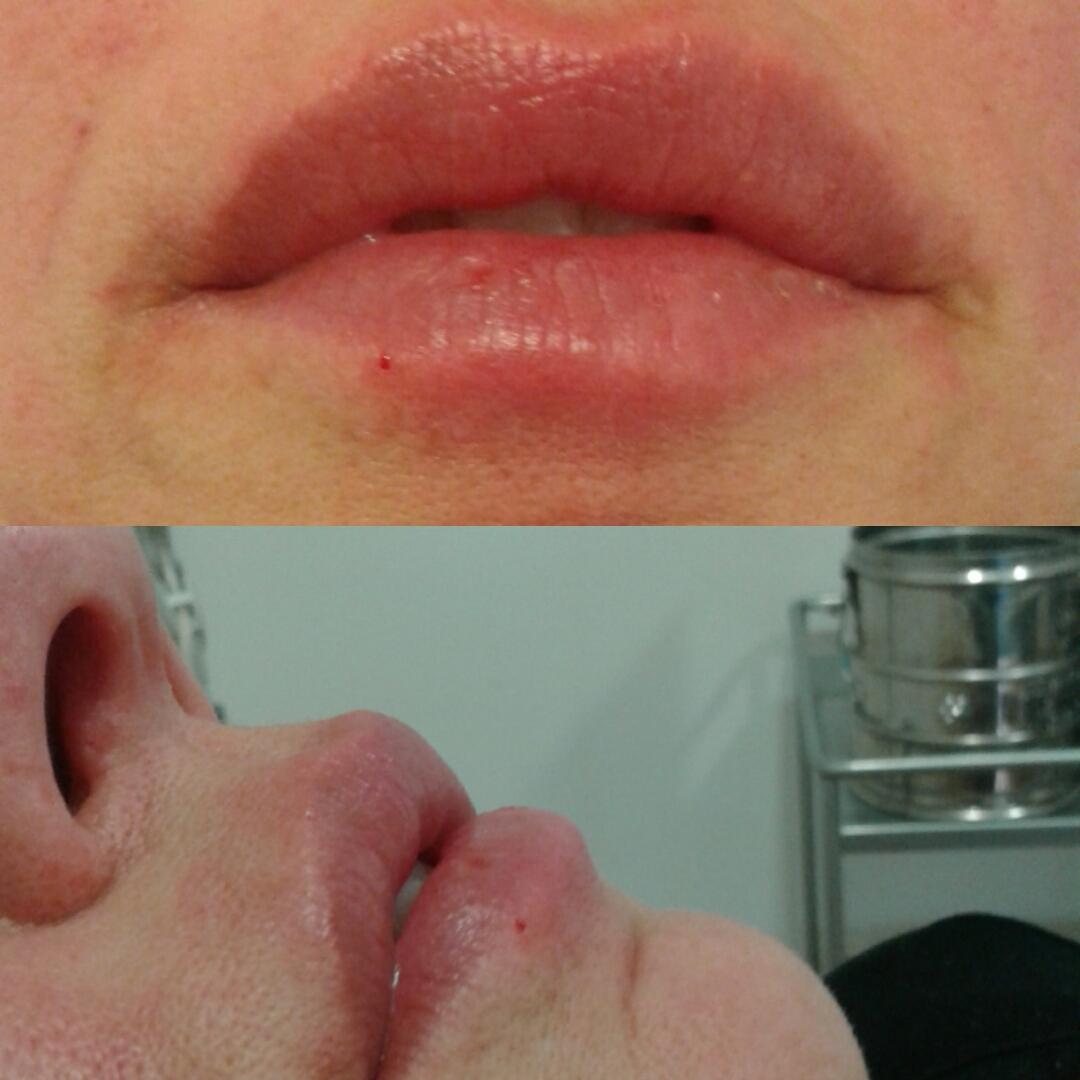 Riempimento e Rughe e Labbra