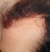 capelli-1
