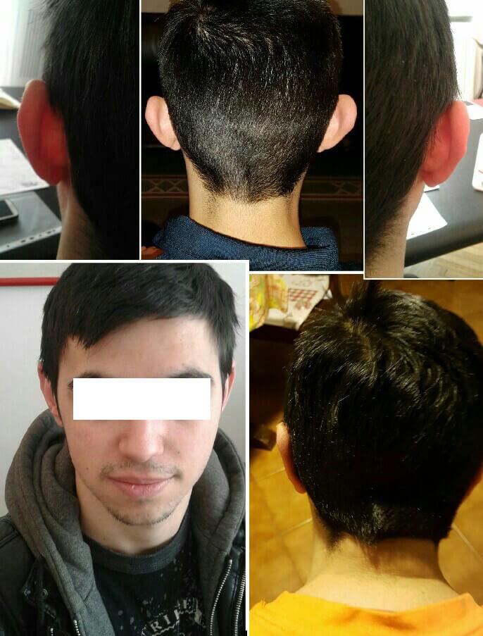 chirurgia estetica delle orecchie