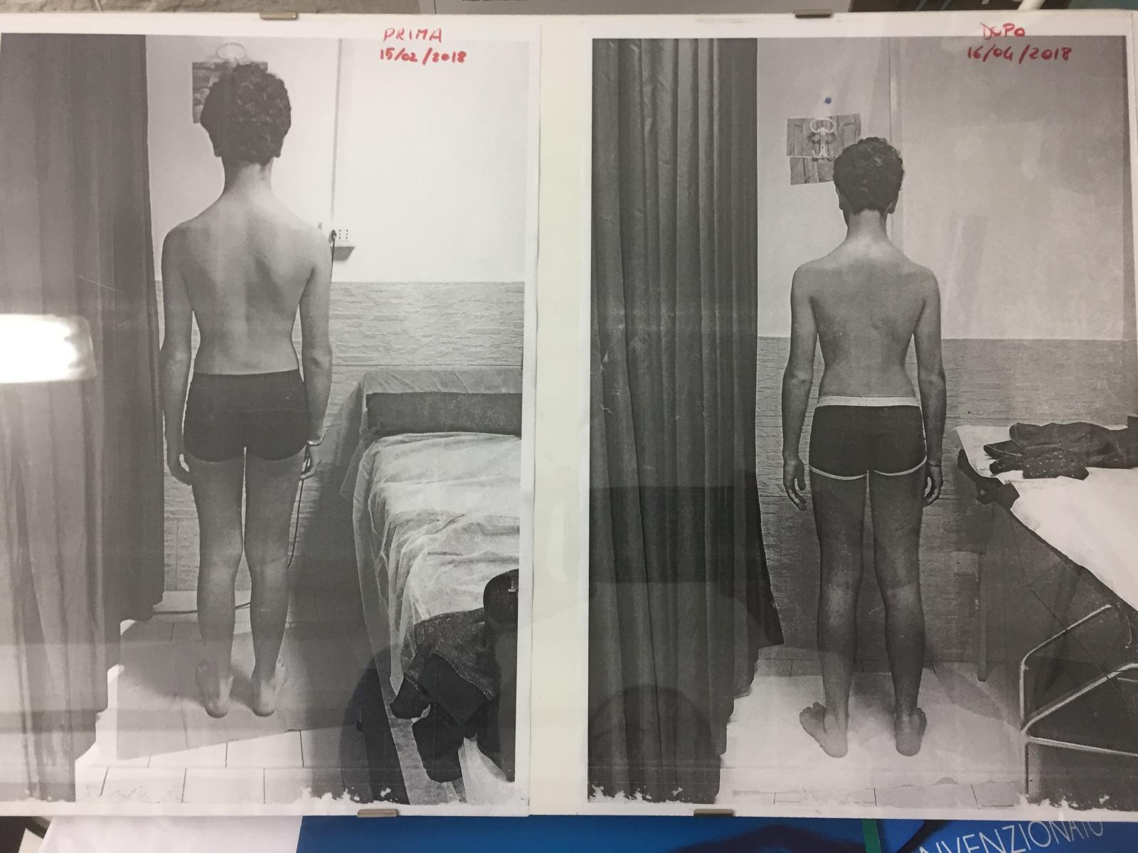 Riprogrammazione posturale prima e dopo due mesi
