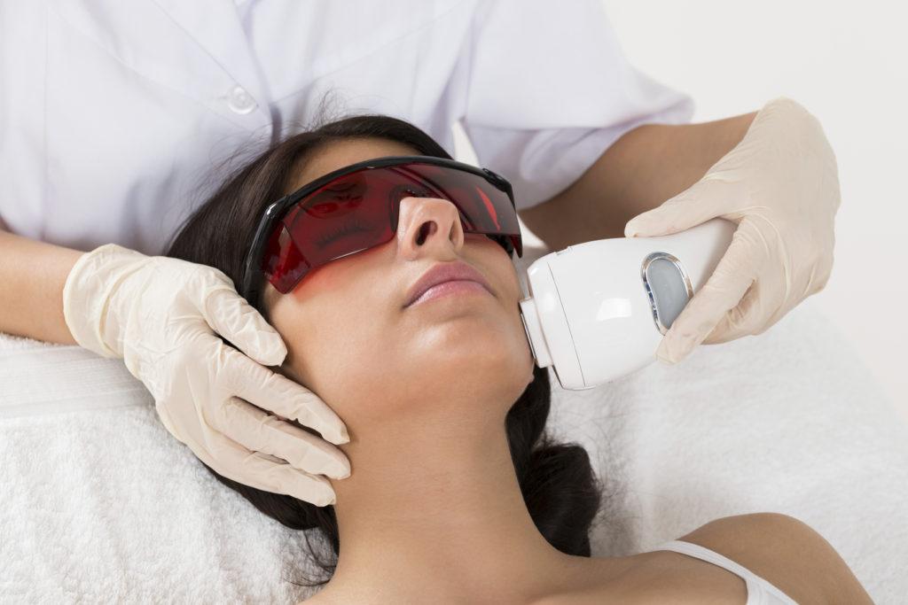 Laser trattamento viso