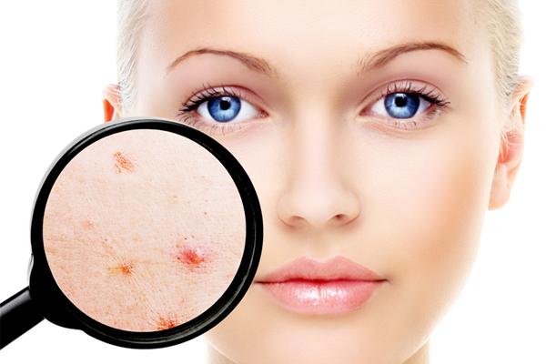 Dermatologia ad Ancora Dott.ssa Melania Giannoni