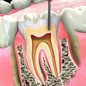 endodonzia a milano