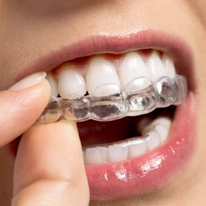 ortodonzia a milano