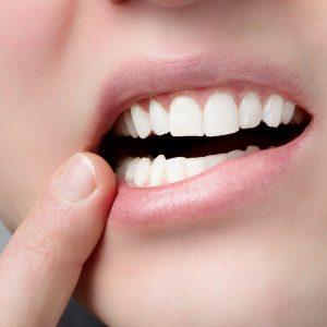 parodontologia a milano