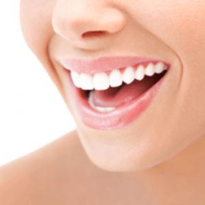 sbiancamento denti a milano