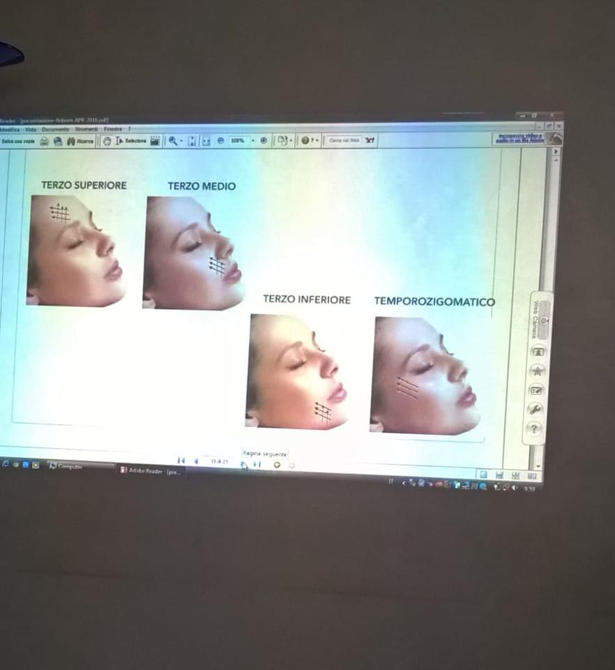 Esempio grafico di posizionamento fili PDO per tonificazione cedimento viso