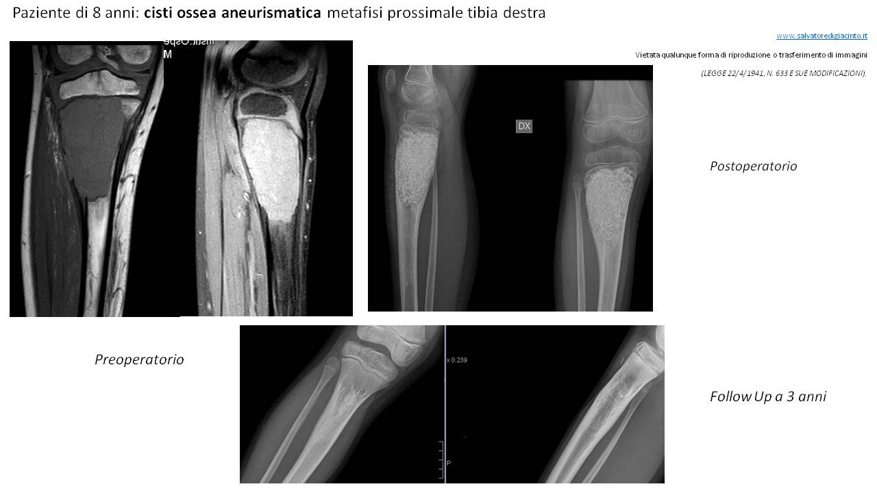 Cisti aneurismatica (1)